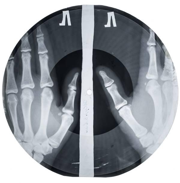 Bone Music_Aufnahme einer Bone Music Platte (c) X-Ray Audio Project.jpg