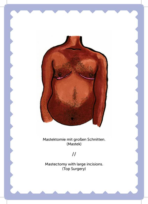 mastektomie-trans-non-binary-LGBTI-magazine-health-gesundheit.jpg