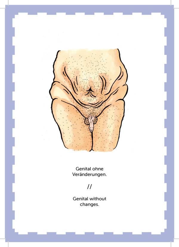 genital-trans-non-binary-LGBTI-magazine-health-gesundheit.jpg