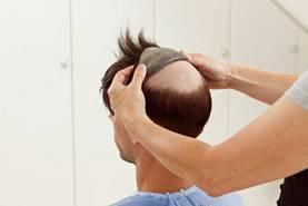 Von vorn nach hinten  wird ContactSkin SPEED auf das haarlose Kopfareal appliziert.